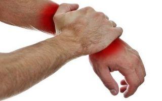 Подробности лечения синдрома Зудека после переломов и сопутствующие симптомы
