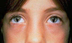 Причины рождения людей с синдромом кошачьего глаза и их особенности