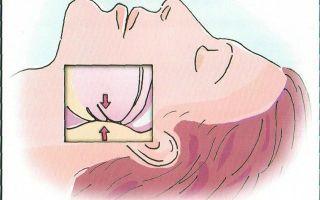 Что такое синдром обструктивного апноэ и как его вылечить