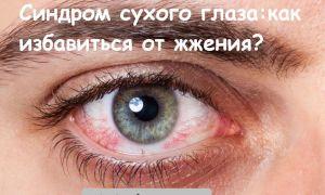 Основные причины синдрома сухого глаза и как его вылечить