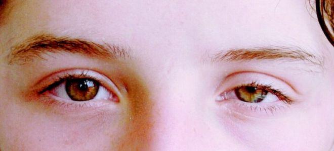 От чего возникает синдром верхней глазничной щели и какие осложнения он может принести