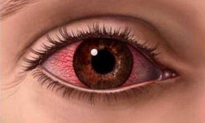 Причины возникновения синдрома красного глаза и как его лечить