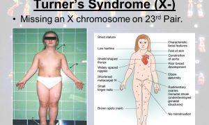 Симптомы синдрома Мея Тернера и как его лечат