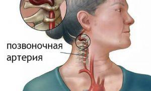 Лечение синдрома позвоночной артерии, диагностика и народные средства