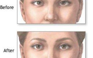 Способы лечения синдрома ленивого глаза и провоцирующие факторы