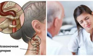 Лечение синдрома позвоночной артерии при шейном остеохондрозе и возможные осложнения